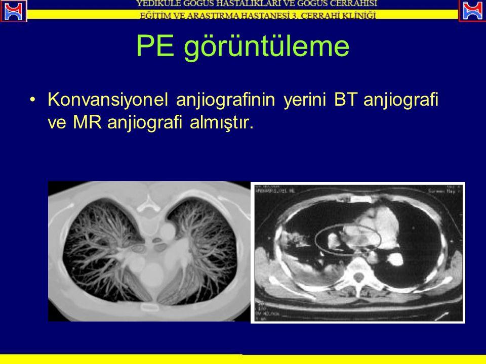 PE görüntüleme Konvansiyonel anjiografinin yerini BT anjiografi ve MR anjiografi almıştır.