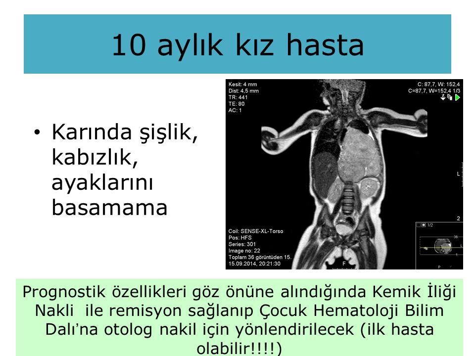 Karında şişlik, kabızlık, ayaklarını basamama 10 aylık kız hasta Prognostik özellikleri göz önüne alındığında Kemik İliği Nakli ile remisyon sağlanıp Çocuk Hematoloji Bilim Dalı'na otolog nakil için yönlendirilecek (ilk hasta olabilir!!!!)