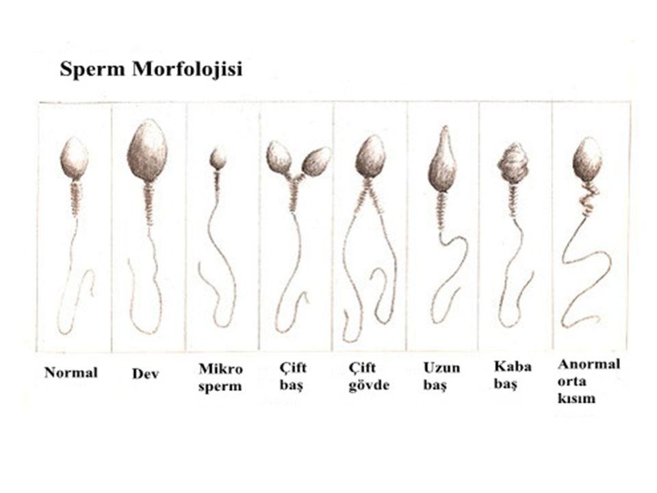 brizgi-spermi-ochen-bolshie