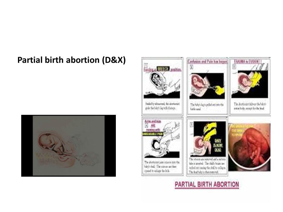 partial birth abortion essay The partial-birth abortion controversy by wayne jackson i occasionally have opportunity to see his columns, and i have been impressed with a number of the essays i've read the article contains a chilling account of a partial-birth abortion, as conveyed by a lady named brenda shafer, a.