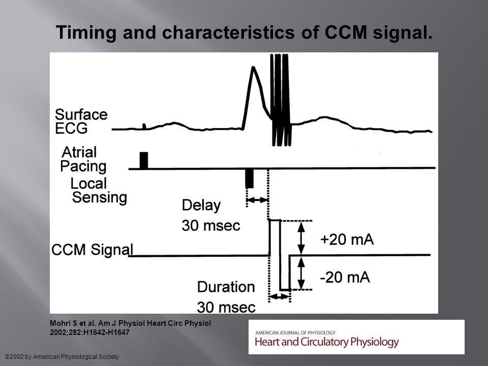 Timing and characteristics of CCM signal. Mohri S et al.